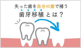 歯牙移植とは?