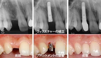 口腔外科(インプラント)
