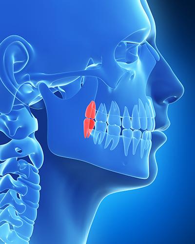歯牙移植(親知らずの移植)とは?